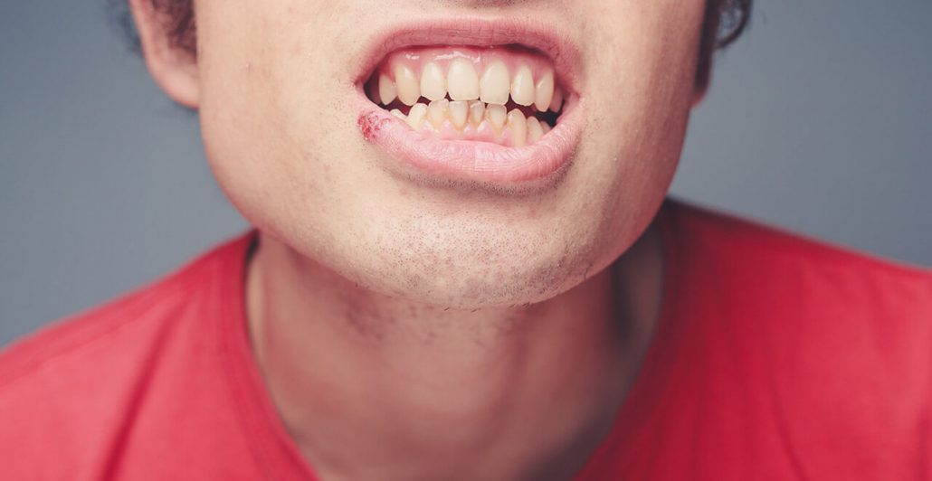 What are cold sores?
